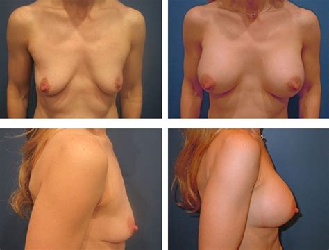 video of breast implant surgery jpg 666x506