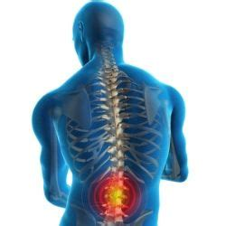 ozone therapy for slipped disc in bangalore dating jpg 250x250