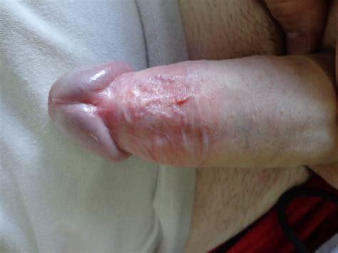 vaporub on my penis jpg 1024x768
